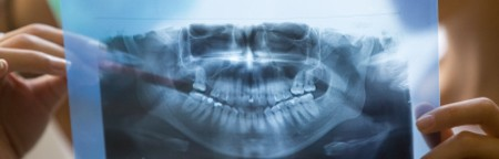 Dental x-ray for oral surgery assistant KY